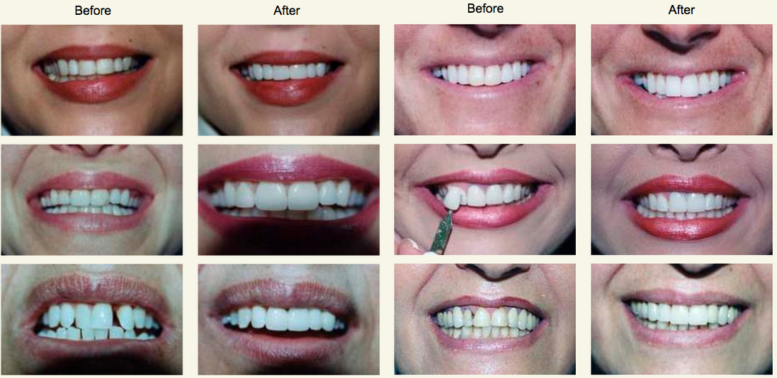 Advance Dental Center Before and After